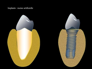 implants dentaires Carry le rouet